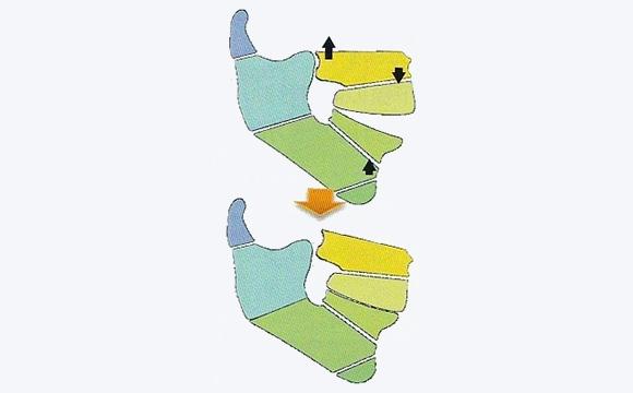 上顎前突症 下顎後退症K・L・M・N・O・P