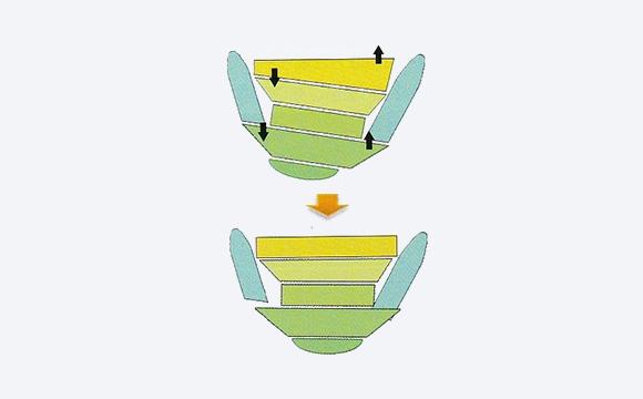 上下顎非対称症